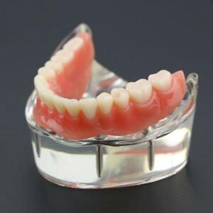 Dental Overdenture Inferior Teeth Study Model With 4 Implants Restoration