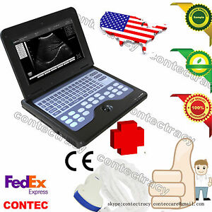 Portable Laptop Machine Digital Ultrasound Scanner 3 5m Convex Probe 3y Warranty