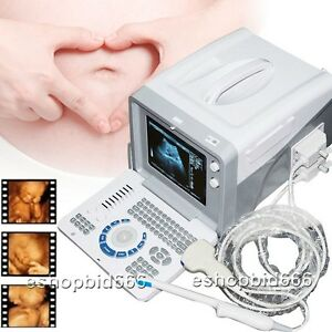 Ce 3d Portable Ultrasound Machine Scanner System 3 5mhz Convex Probe Usb Vga New