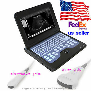 Us Digital Portable Laptop B ultrasound Scanner Machine With Convex micro Convex