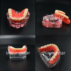 Dental Model Overdenture Teeth Study 4 Implants Demo Superior 6001 inferior 6002