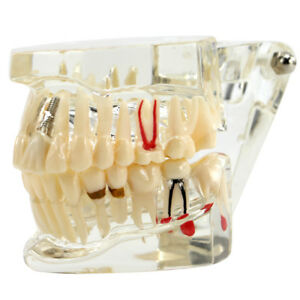 Dental Study Teach Implant Teeth Model Restoration Bridge Caries Denture Educate