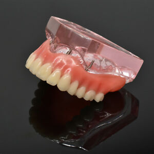 Teeth Study Model Overdenture Superior With 4 Implants Upper Demo Pink Dental