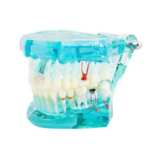 Implant Disease Study Tooth Teeth Model Bridge Restoration Denture 2001 Dental