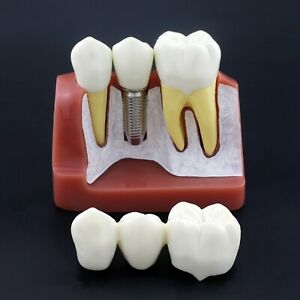 Dental Implant Typodont Study Teeth Model Removable Crown Bridge Nissin Type