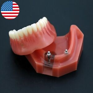 Usa Dental 2 Implants Typodont Teeth Model Lower Jaw Overdenture Inferior 6007