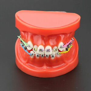 Dental Orthodontic Treatment Model Demo Metal Bracket Arch Wire Ties Chains Red