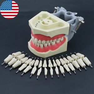 Columbia 860 Type Dental Typodont Teach Restorative Model Removable 32pcs Teeth