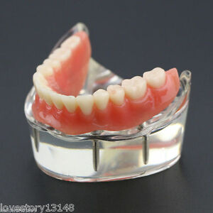 Dental Overdenture Inferior Teeth Study Model W 4 Implants Restoration 6002