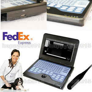 Digital Notebook Diagnostic Machine Ultrasound Scanner Cms600p2 Rectal Probe