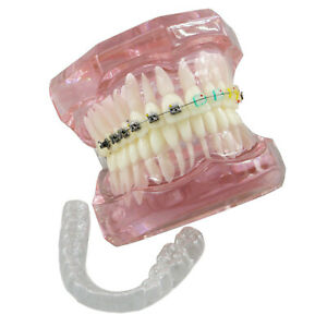 Dental Retainer Teeth Model Orthodontics Self ligating Metal Ceramic Brackets