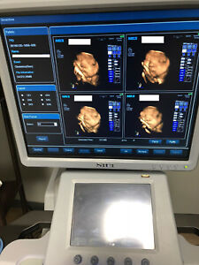 3d 4d Ultrasound Machine Siui Apogee 3800 Touch