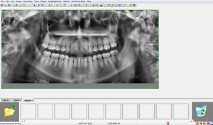 Gendex Vixwin Imaging Software Dental Imaging latest Version