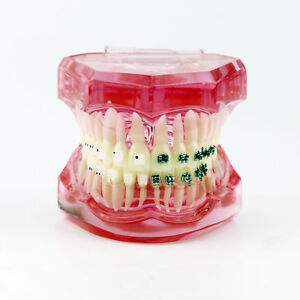 Pink Dental Orthodontics Study Model With Ceramic And Metal Brackets 3003