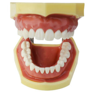 Teeth Model Education Model Teach Model Lab Supply Study Nurse Training Display