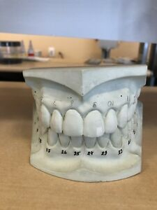 Dental Laboratory Study Model Chops