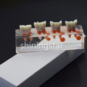 2x Dental Teeth Model 4 Stage Endodontic Treatment Demonstrate Study Model M4018