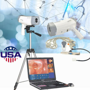 800 000 Pixels Electronic Colposcope Sony Video Camera Gynaecology software gift
