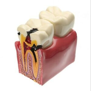 Youya Dental Decay Teeth Comparation Study Model 6 Times Caries Tooth Teachin