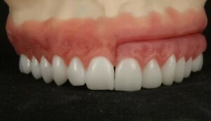 Dental Implant Patient Education Model Zirconia Bridge Vs All on 4 Hybrid