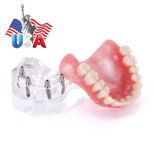 Dental Implant Teeth Model M6001x Demo Overdenture Restoration 4 Implants Upper