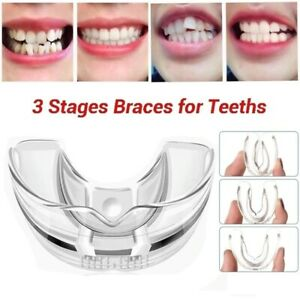 3 Stages Dental Appliance Orthodontic Alignment Trainer Teeth Retainer Mouth