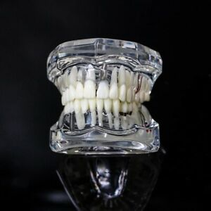 Dental Model Teeth Implant Restoration Bridge Teaching Study Dentist Dentistry