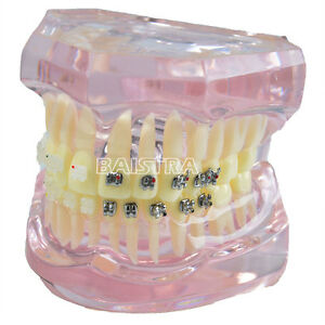 Dental Lab Orthodontic Metal Ceramic Bracket Brace Teeth Study Teach Model