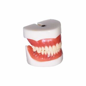 Dental Demonstration Teeth Educational Model Denture Implants 3004