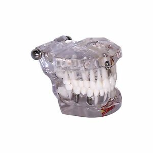 Dental Demonstration Teeth Educational Model 3003 Mixed Clear