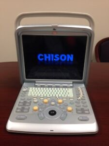 New Chison Q9 Portable Ultrasound System