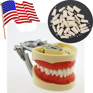 Us Dental Typodont Model Practice Teeth Removable Replacement Kilgore Nissin 200