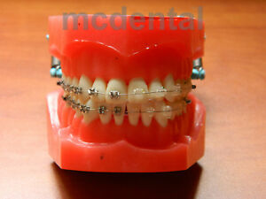 Orthodontic Adult Braces Typodont Demostration Model Dentoform Teeth Tooth Study