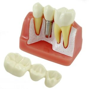 Dental Implant Model Typodont Analysis Teeth Bridge Compare Removable Nissin