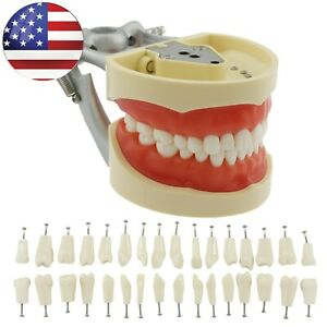 Dental Nissin 200 Typodont Practice Model 32 Removable Teeth Kilgore Style Usa