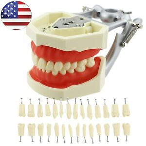 Dental Kilgore Nissin 200 Typodont Model 28 Pcs Replacement Removable Teeth Usa