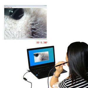 Usb Hd Camer Tool Ear Pick Wax Remover Cleaner Scope Endoscope Camera Windows Us