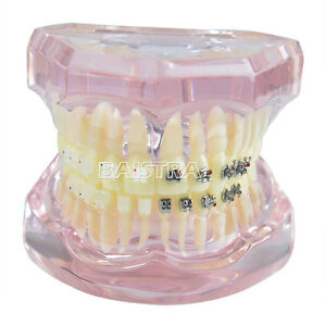 Dental Orthodontics Study Teach Teeth Model With Metal Ceramic Brackets Zyr 3003