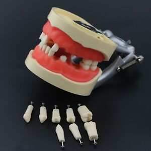 Kilgore Nissin Style Dental Typodont Model Teeth Removable 32 Screw in Practice