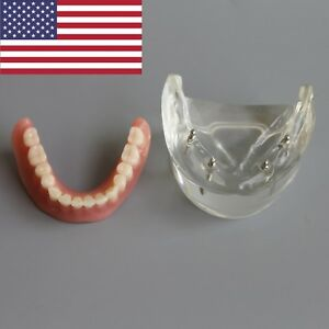 Usa Dental Implant Model Overdenture Teeth Typodont 4 Implant Lower Jaw 6003