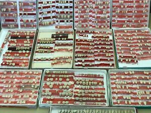 Huge Lot Over 400 Teeth Biotone Trubyte Pontics Orthodontic