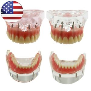 Dental Implant Restoration Typodont Model Overdenture Demo Upper Lower Jaw Usa