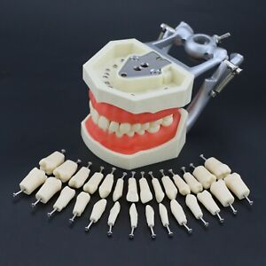 Kilgore Nissin Style Dental Typodont Model 28pc Replacement Screw in Teeth M8011