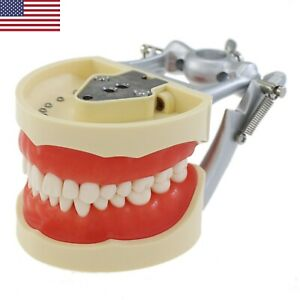 Usa Kilgore Nissin 200 Type Dental Typodont Model Removable 32pcs Screw in Teeth