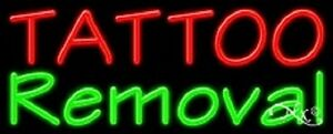 New tattoo Removal 32x13 Real Neon Sign W custom Options 11485