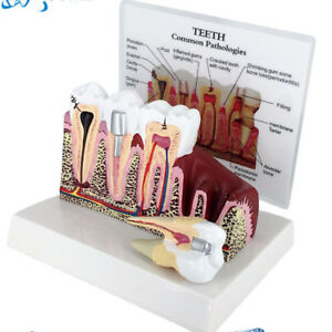 Dental Medical Study Teaching Analytical Tooth Classification Periodontal Model