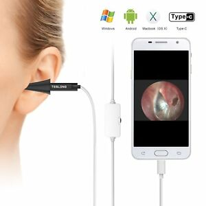 Digital Video Otoscope Ear Scope Otology Inspection Camera Iphone Android Pc Mac