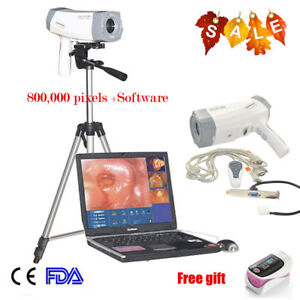 Digital Video Electronic Colposcope Sony Camera Software tripod Ce Update