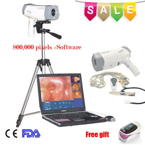 800 000 Pixels Electronic Colposcope Colposcopy Sony Imaging Usb Software Ce