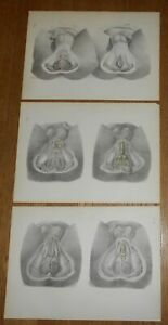 3 Antique 1870 Medical Prints Human Anatomy From Surgical Anatomy By Maclise H